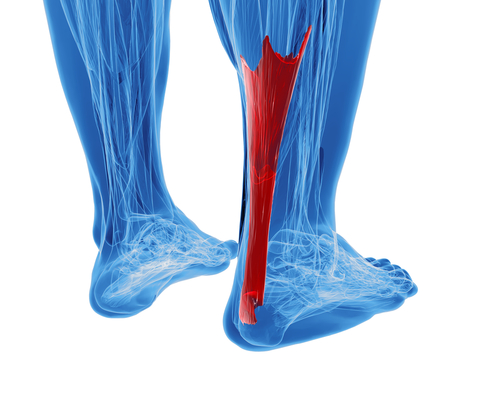 Eccentric Loading: An Achilles Tendinopathy Savior